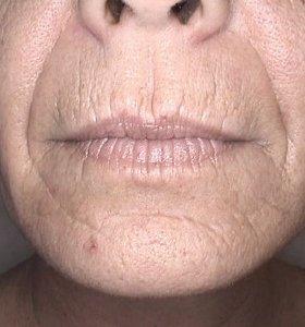 Фракционное омоложение лица. Фото до