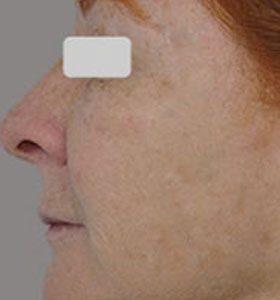 Фракционная шлифовка кожи лица. Фото после